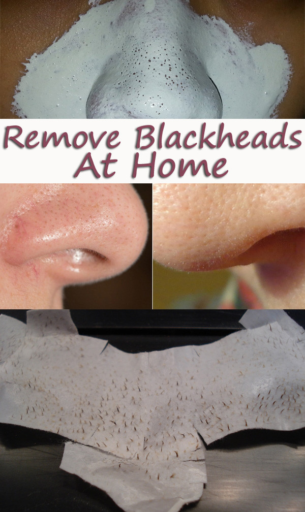 Anti Blackhead Maske Diy  Homemade Blackheads Remover Tutorials and Ideas Hative