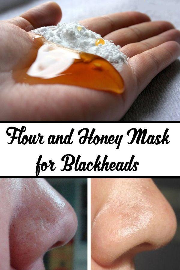 Anti Blackhead Maske Diy  Best 25 Get Rid Blackheads ideas on Pinterest