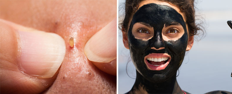 Diy Mitesser Maske  WTF Diese schwarze DIY Maske zieht alle Mitesser raus