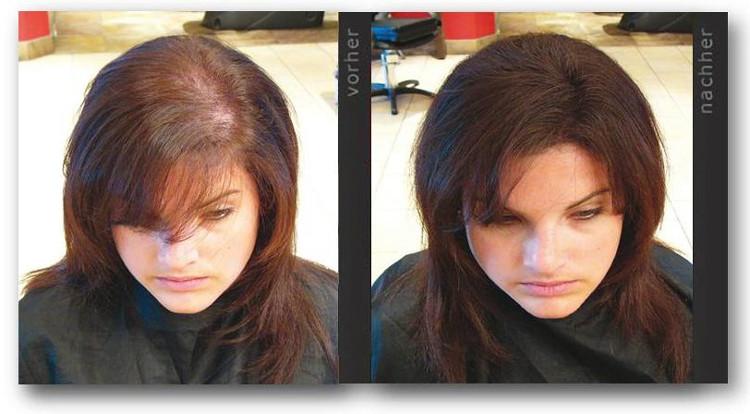 Frisuren Für Lichtes Haar Am Oberkopf  Frisur Für Lichtes Haar Frau Frisur