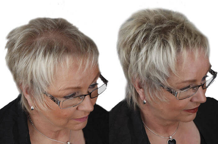 Frisuren Für Lichtes Haar Am Oberkopf  Schütthaar gegen Haarausfall dünnes Haar und kahle
