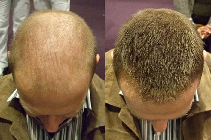 Frisuren Für Lichtes Haar Am Oberkopf  Dünnes Haar einfach kaschieren