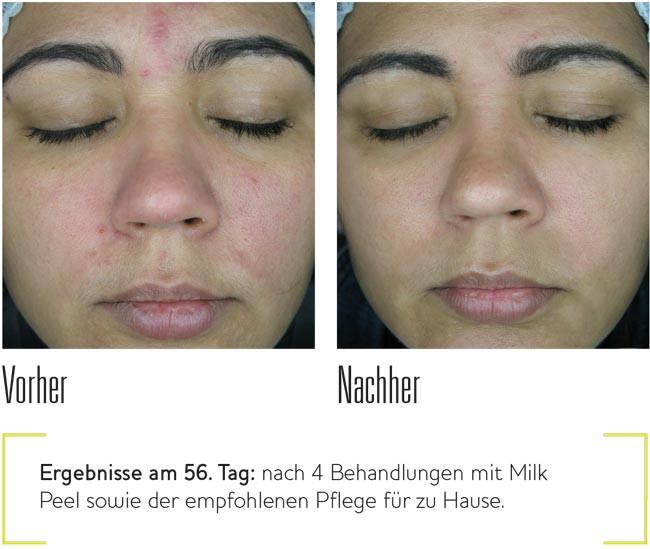 Chemisches Peeling Für Zuhause  Chemisches Peeling Dr Pavicic Hautarzt München