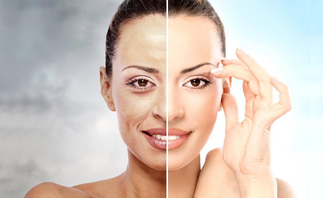 Chemisches Peeling Für Zuhause  Peelings voor huidverjonging Medisch Centrum t Gooi
