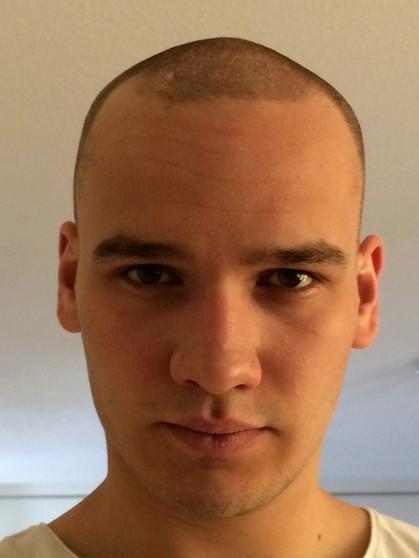 Frisuren Bei Haarausfall  Produktfotos Von Undercut Frauen Hinterkopf