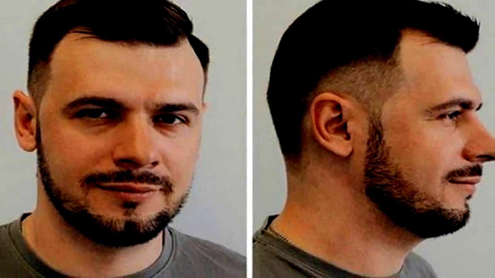 Frisuren Bei Haarausfall  Neu Madchen Frisur Kurz Für Mädchen Bob Schulterlang Oder