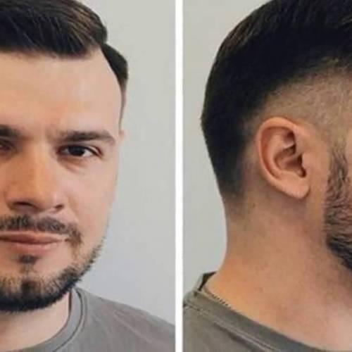Frisuren Bei Haarausfall  Frisuren Männer Für Haarausfall