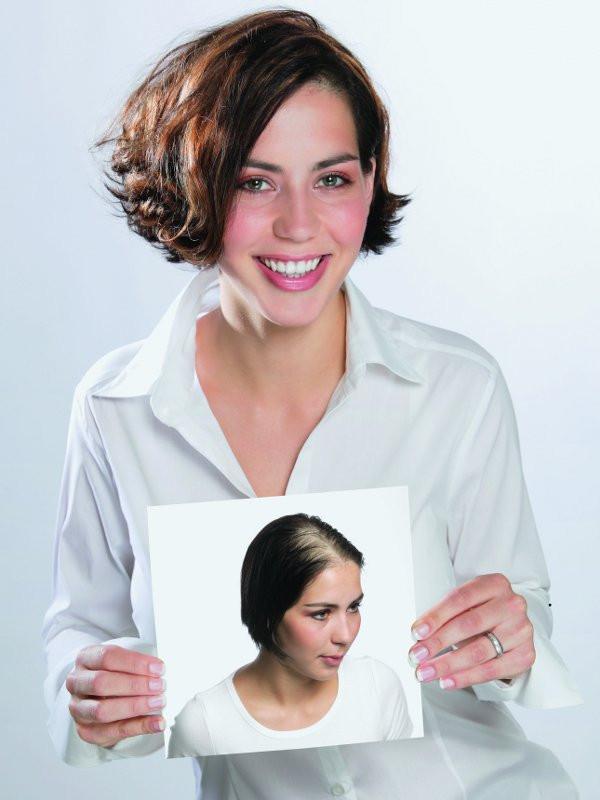 Frisuren Bei Haarausfall  Endlich wieder volles Haar Was tun bei Haarausfall