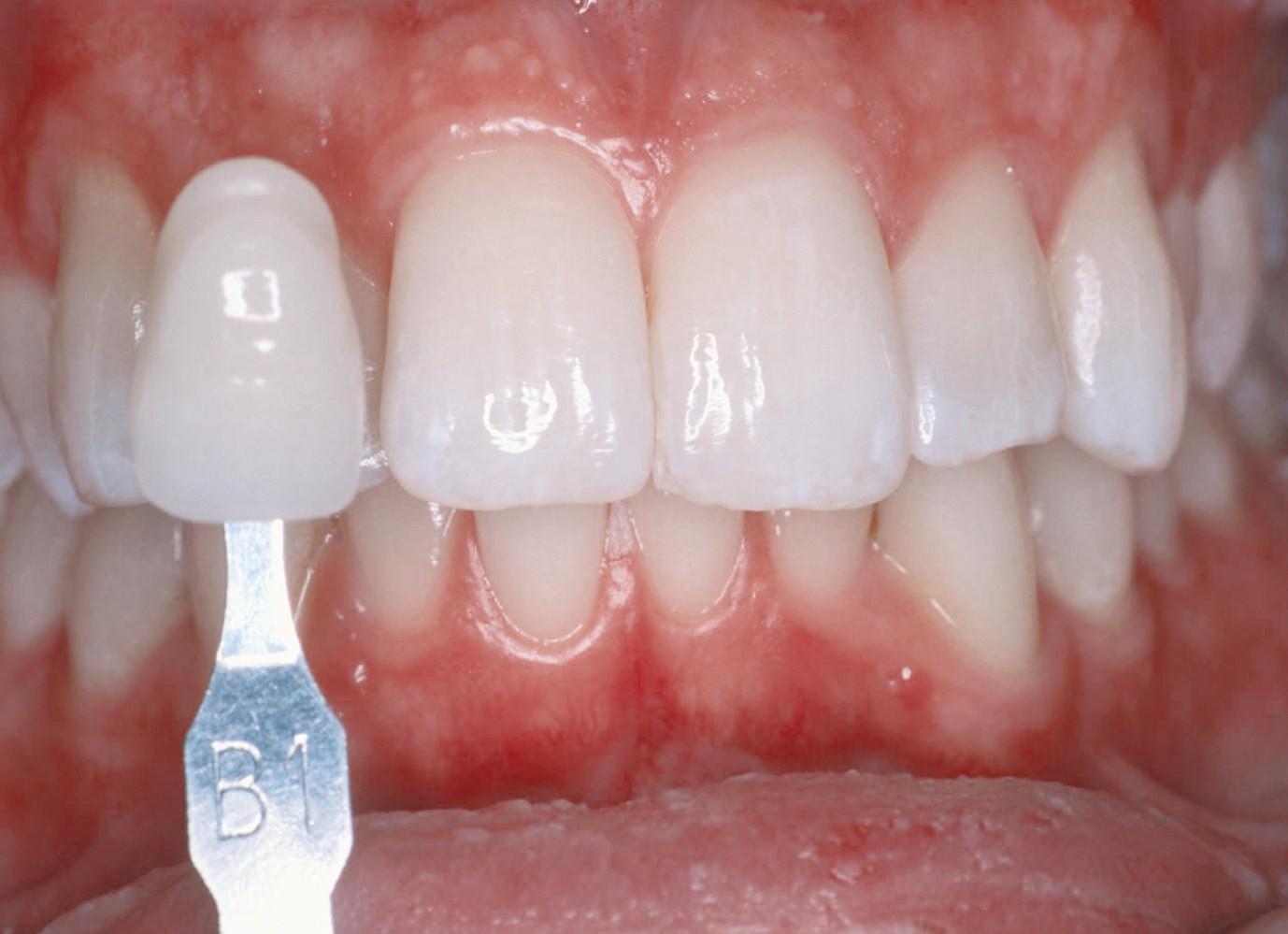 Zähne Bleichen Zu Hause  Zähne Aufhellen Zu Hause