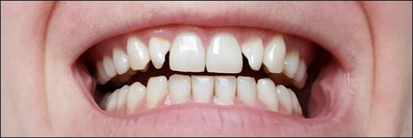 Zähne Bleichen Zu Hause  Zahnaufhellung zu Hause Zähne bleichen mit Strips für 14